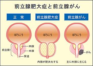 尿 痛み 後 射精